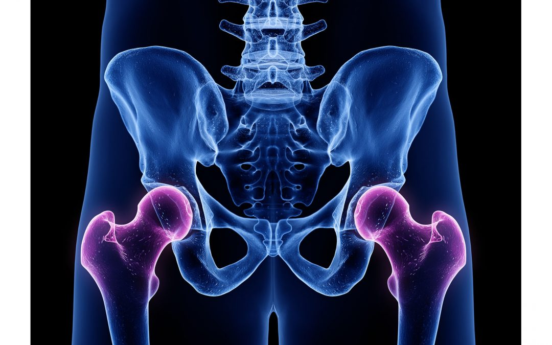 Everything You Need to Know About Driving After a Hip Replacement