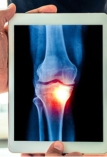 knee replacement surgeons melbourne